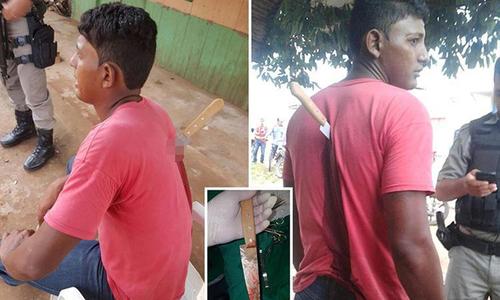 Thanh niên Brazil ngồi đợi xe cứu thương với dao ngập sâu trên lưng