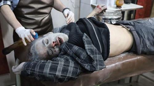 Một người đàn ông bị thương trong vụ không kích vào Hezzeh, không xa Hamouria hôm 15/3. Ảnh: AFP.