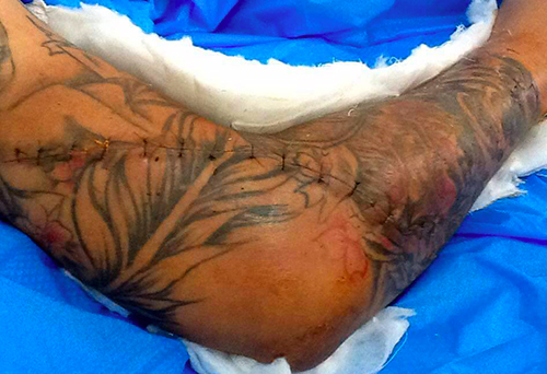 Nam thanh niên bị chém gần lìa tay sau cuộc rửa hận