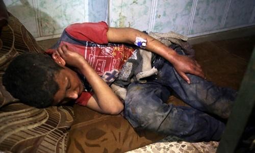 Một nạn nhân được cho là đã hít phải khí độc ở Douma hôm 7/4. Ảnh: Rex.