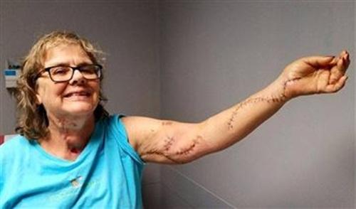 Y tá Elise Wilson với cánh tay chằng chịt vết khâu vì bị đâm dao. Ảnh: Massachusetts Nurses Association.