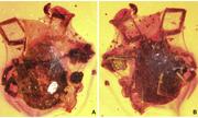 Ve hút máu chết kẹt trong hổ phách 100 triệu năm