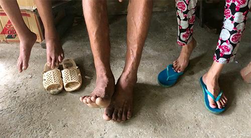 Đôi chân to lớn, của ông Y gần như không có dép giày nào ở địa phương bán mà ông mang vừa. Ảnh: Cửu Long