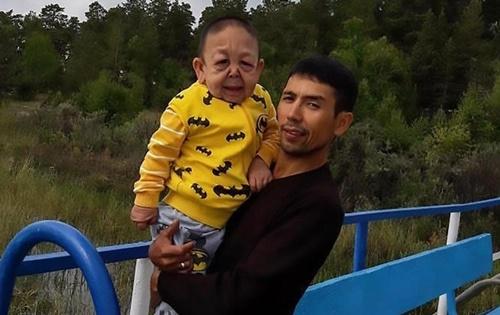 can-benh-hiem-khien-cau-be-6-tuoi-kazakhstan-trong-nhu-ong-lao