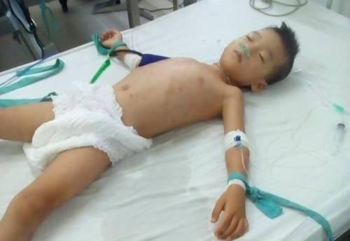 Bé trai bị Hiếu đánh đập phải nhập viện. Ảnh người thân của bé trai.