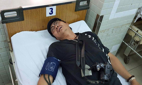 Đạo diễn Quốc Việt tố cáo bị công an đánh