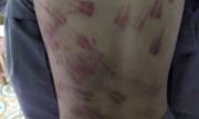 Bé trai mồ côi bị đánh bầm tím khắp cơ thể