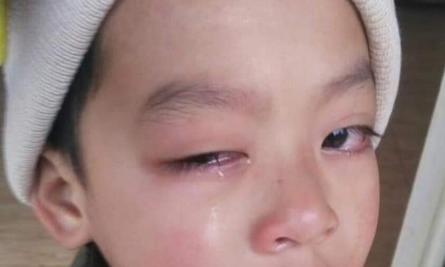 Giáo viên bị tố cáo đánh tổn thương mắt học sinh lớp 1 -
