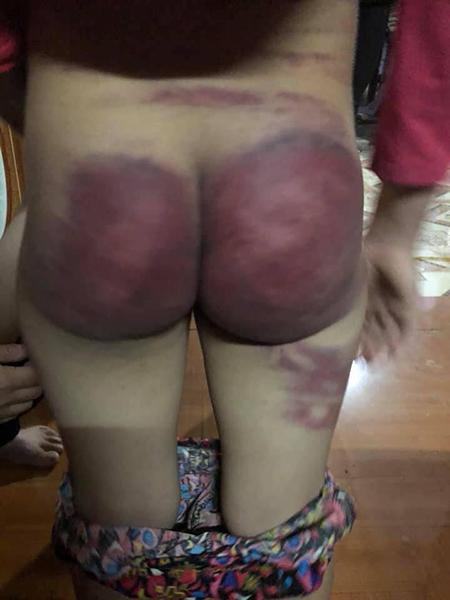 Bé Nhung bị đánh bầm dập cơ thể. Ảnh: Lam Sơn.