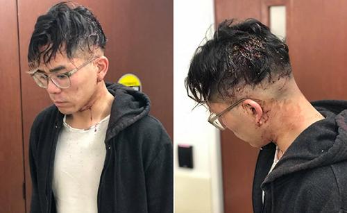 Những vết thương trên cơ thể Michael Nguyen mà anhtố cáo do ông chủ Peter Nguyen hành hung mình. Ảnh: Facebook
