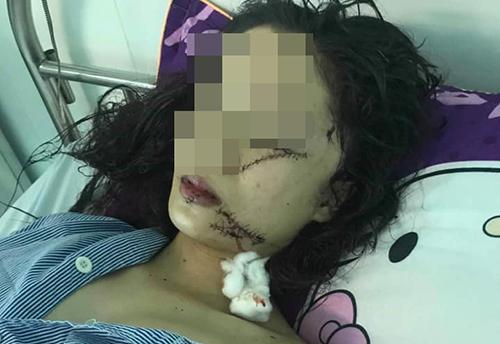 Thiếu nữ bị ba bạn gái vây đánh, rạch mặt trong đêm - ảnh 1