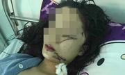 Thiếu nữ bị rạch mặt trong đêm do mâu thuẫn lúc dọn phòng