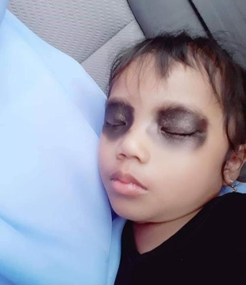 Lợi dụng con ngủ, người mẹ bôi thảo dược màu đen lên mắt con.