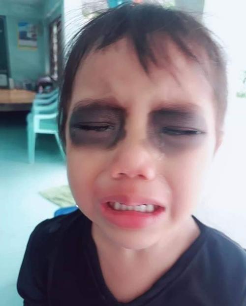 Cô bé òa khóc khi thấy mắt mình thâm đen.