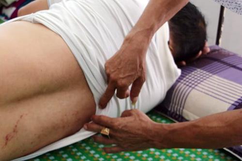 Vết trầy xước trên lưngđại úy Nguyễn Hoàng Nhã. Ảnh: Thiện Hữu.