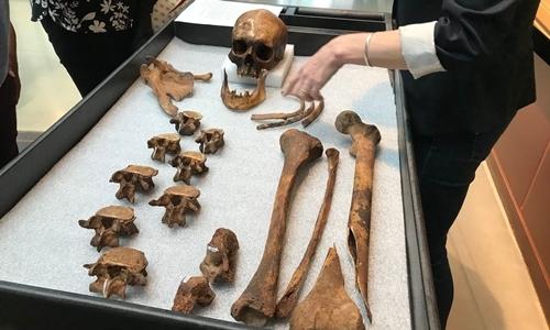 Bộ hài cốt được khai quật ở Connecticut tháng 11/1990. Ảnh: Washington Post.