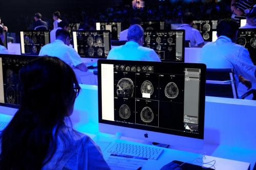Không chỉ trong lĩnh vực lao động phổ thông, AI còn có khả năng ảnh hưởng tới nghề nghiệp trình độ cao như bác sĩ, luật sư.