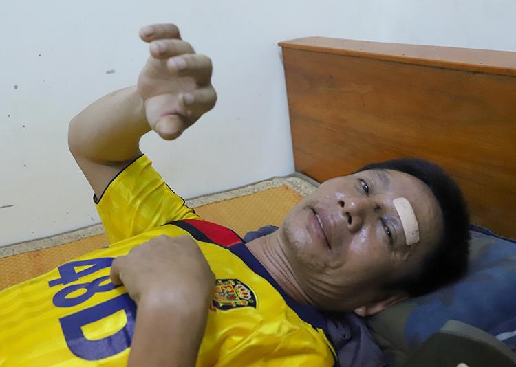 Ông Tỳ bị thương vùng đầu và chân, đang được quân y chăm sóc. Ảnh: Đức Hùng