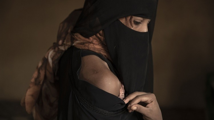 Eman Idrees với vết sẹo trên vai từ những trận đòn roi trong trại tập trung của bọn buôn người. Ảnh: AP.