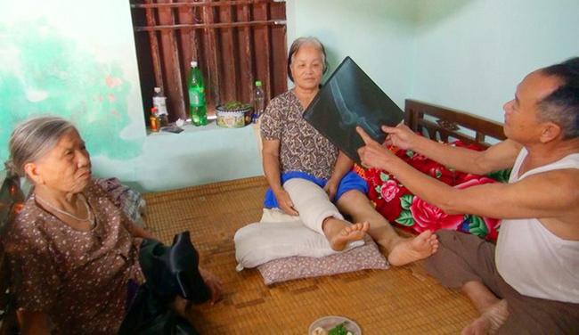 Bà Phạm Thị Thanh (ngồi giữa) ở thôn 1 xã Thiệu Trung bị trâu húc khiến vỡ khớp gối. Ảnh: Lam Sơn.