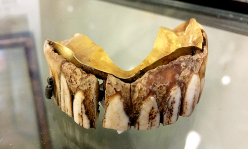 Bộ răng giả 200 năm tuổi bằng vàng