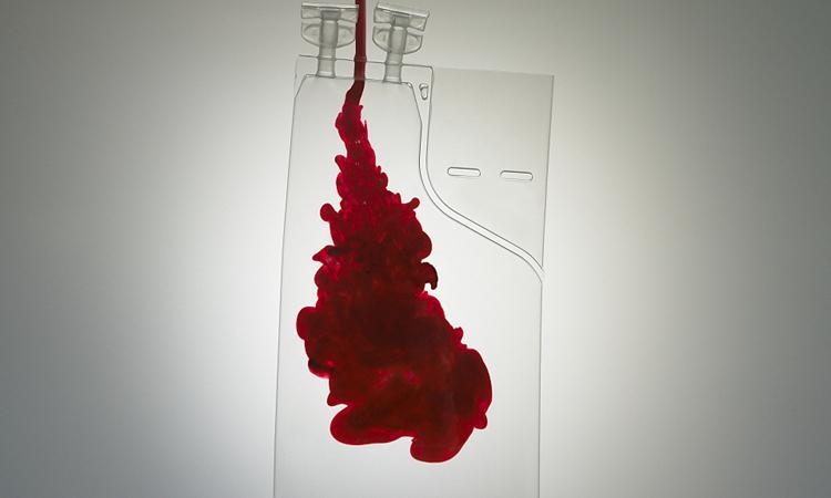 Huyết tương của người khỏi bệnh có thể giúp điều trị Covid-19. Ảnh: CGTN.