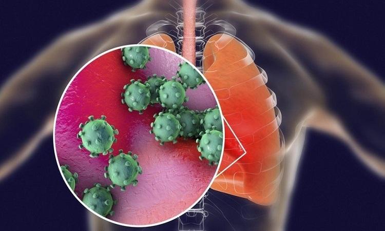 Tổn thương phổi ở bệnh nhân nCoV không bộc lộ triệu chứng