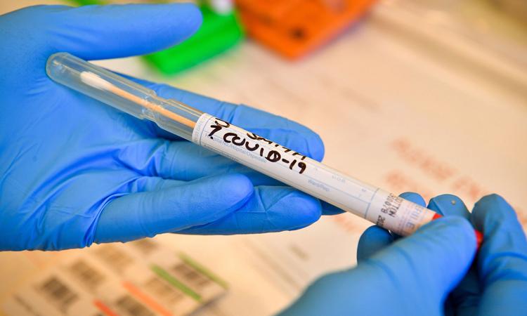 Mẫu bệnh phẩm xét nghiệm Covid-19 tại Bệnh viện Đại học xứ Wales ở Cardiff, Anh. Ảnh: Conventry Live.